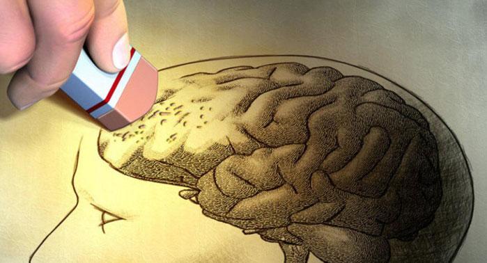 memoria-amnesia